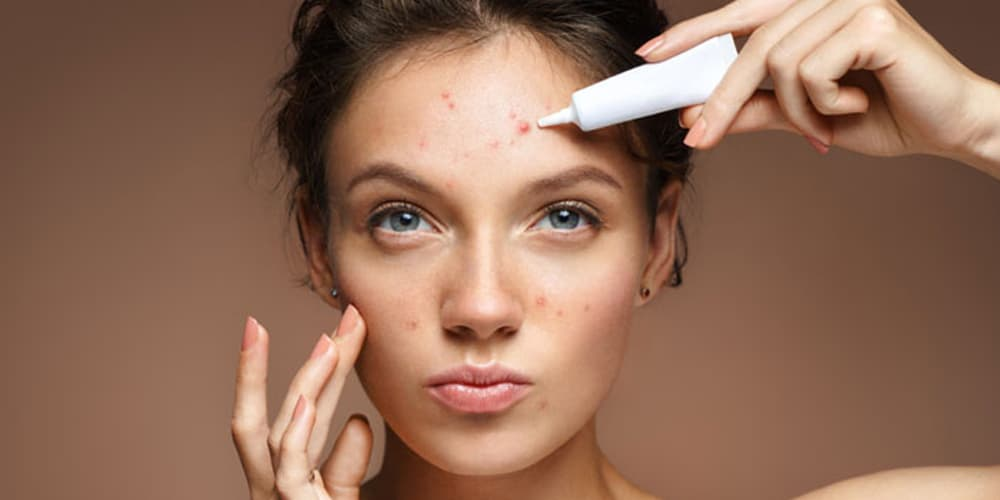 Best Medicinal Creams To Treat Pimples – Reviews & Buyer's Guide 6