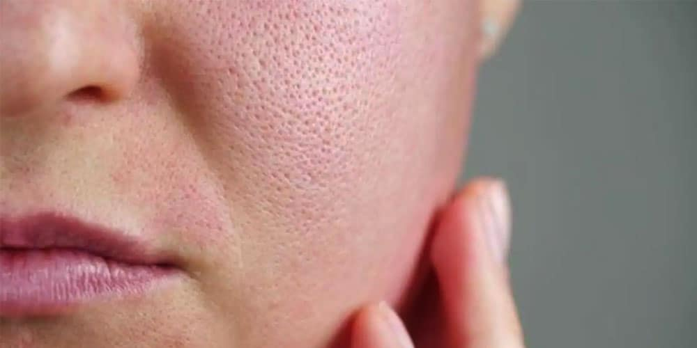 How To Minimize And Clear Open Pores In Face